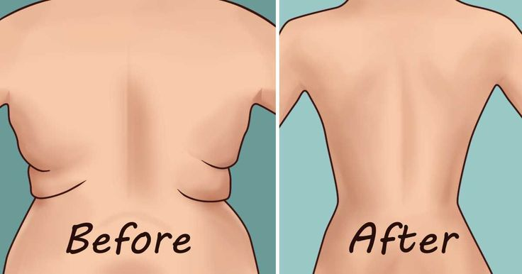 eliminate-back-fat-underarm-flab-4-quick-exercises.jpg